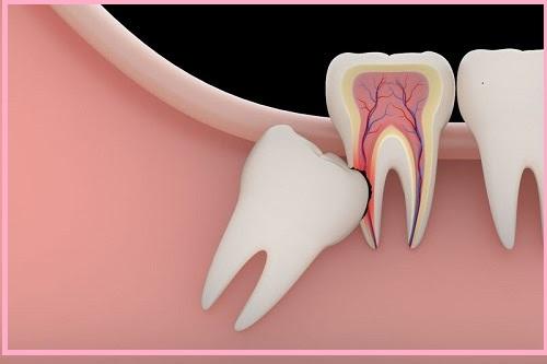 Cần làm gì khi bị sưng nướu răng khôn?